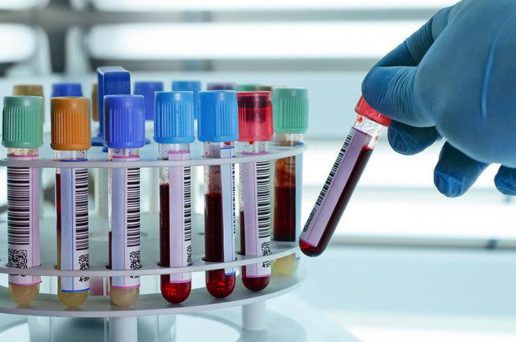 Онкологические заболевания: какие анализы и как часто сдавать?