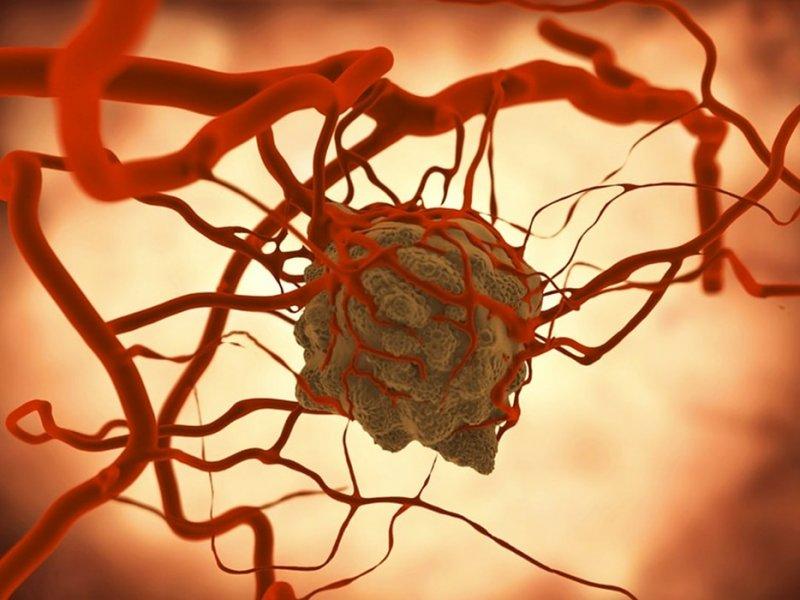 Ученые назвали неуязвимую перед раком группу крови