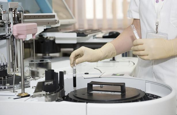 Ученые нашли продукт, предотвращающий диабет и рак