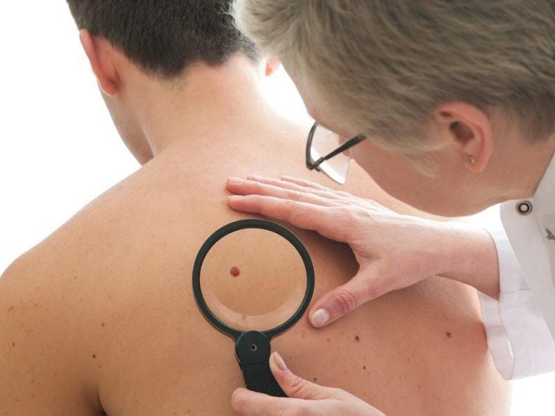 Рак кожи может передаваться по наследству