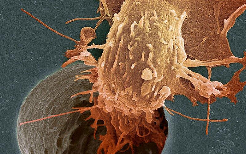 Ученые нашли способ приостанавливать развитие рака последней стадии