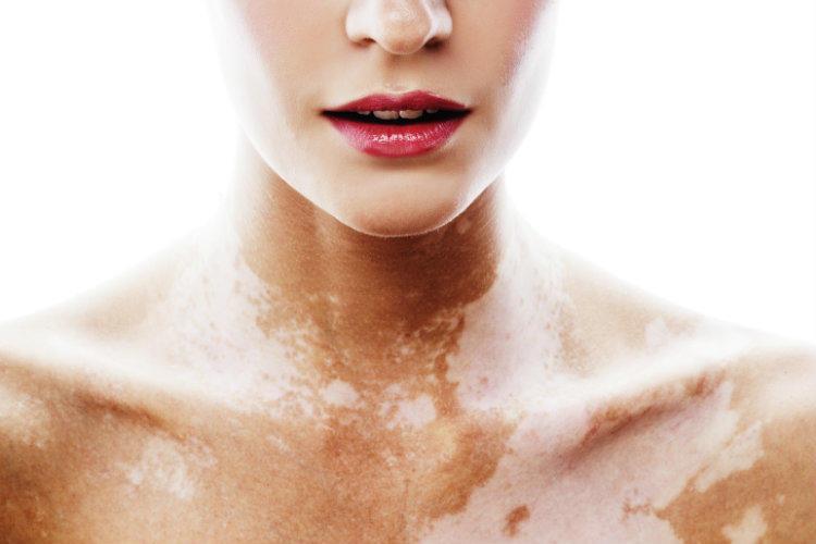 Белые пятна на коже: особенности витилиго