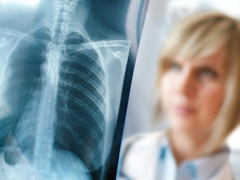 Онколог: от рака легкого каждый второй пациент умрет вскоре после диагноза