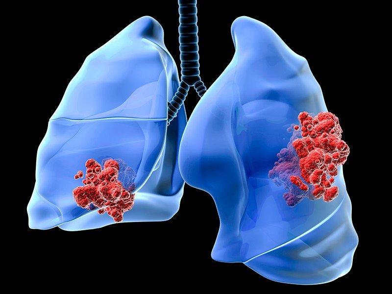 Специалисты назвали симптомы рака легких
