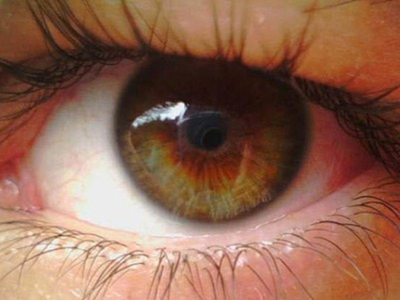 Раздражение глаз у жительницы Великобритании оказалось симптомом опухоли в мозге