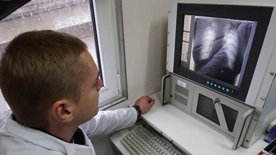 Ученые назвали причины рака легких у некурящих людей
