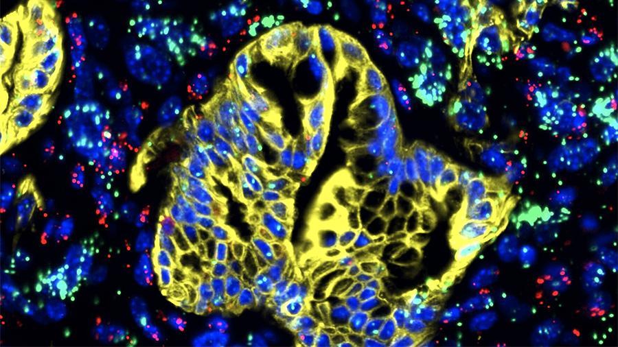Назван способ быстрого выявления рака поджелудочной железы