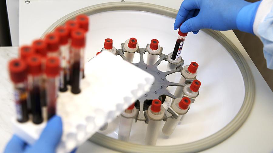 Одной кровью: ученые научились диагностировать рак легких без рентгена