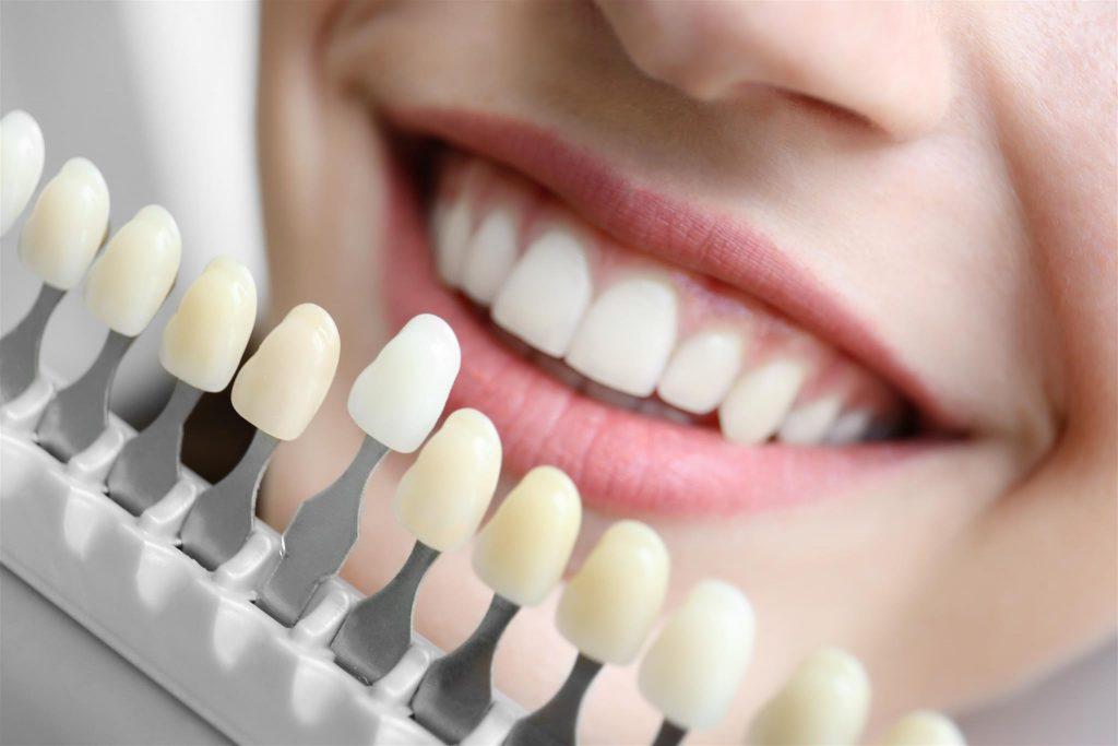 Виниры: цена за один зуб в Москве, преимущества методики