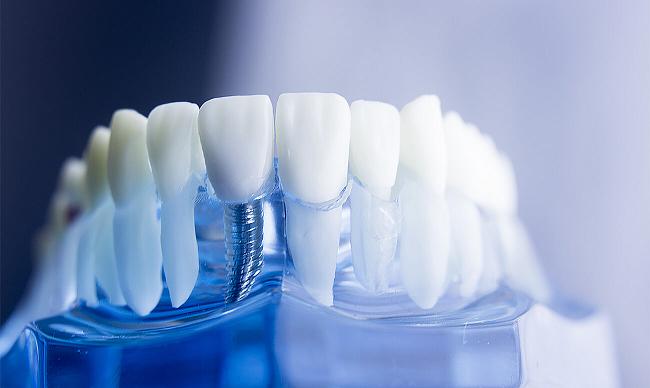 Имплантация зубов в Киеве. Сколько служит имплант?