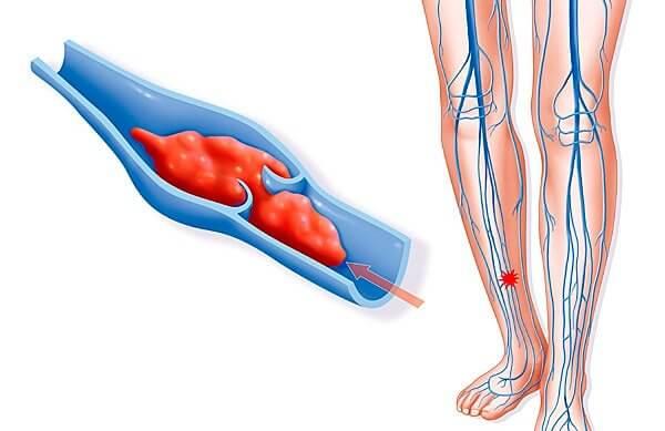Признаки венозного тромбоза