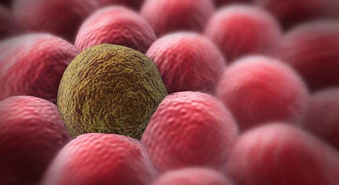 Что такое саркома мягких тканей?