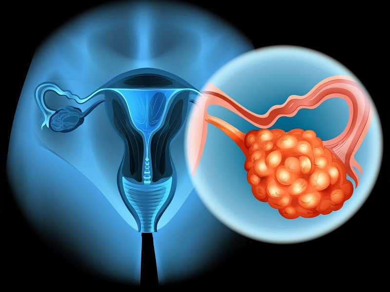 Результаты испытаний GSK и AstraZeneca могут расширить использование лекарств от рака яичников