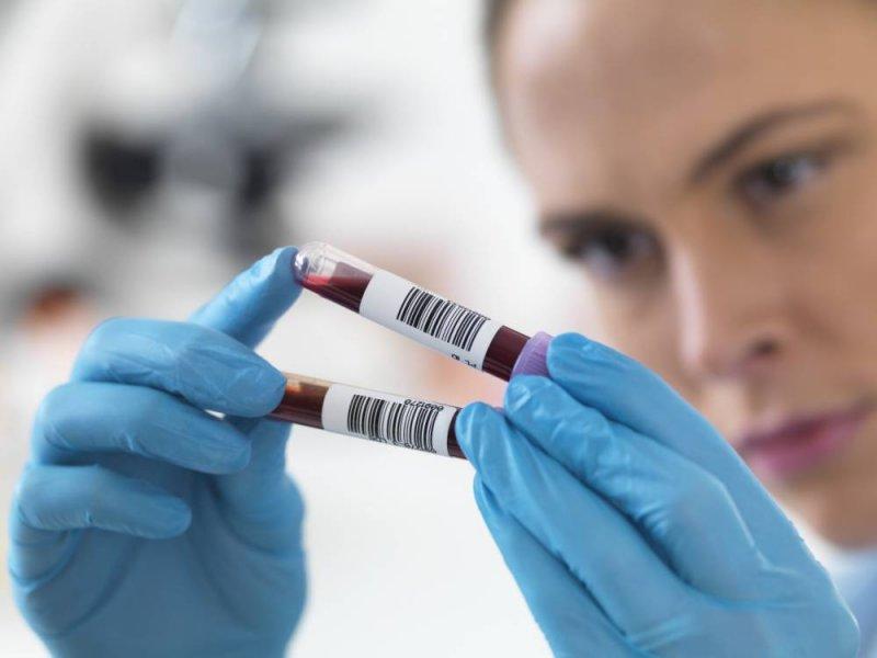 Рак легких найдут в крови на первой стадии