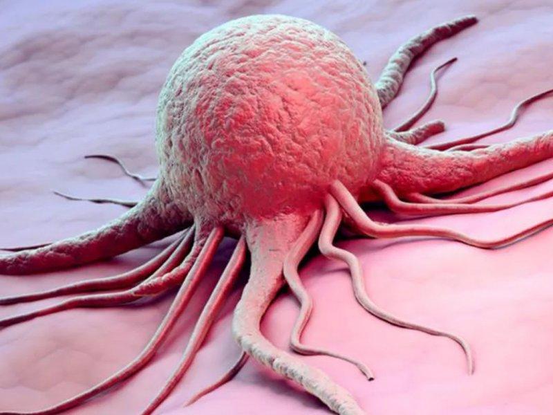 Врач-онколог рассказал о лечении глиобластомы