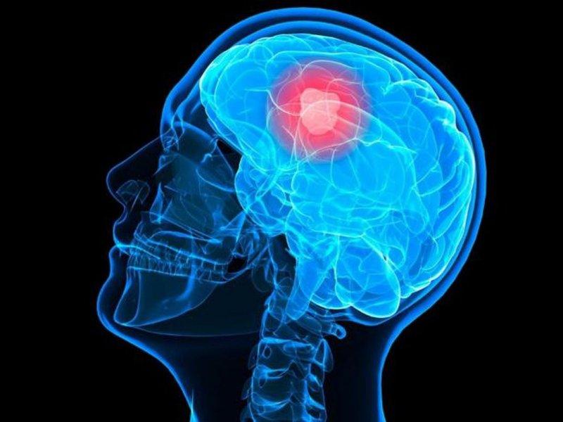 Онколог рассказал, как часто в России заболевают раком мозга