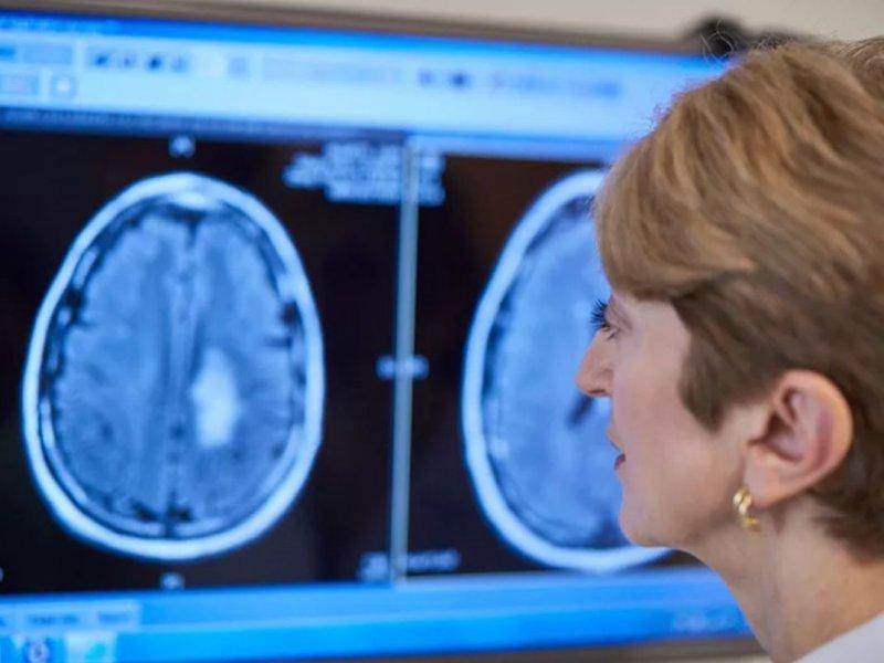 Нейрохирург Алексей Кащеев: на симптомы рака мозга часто не обращают внимания