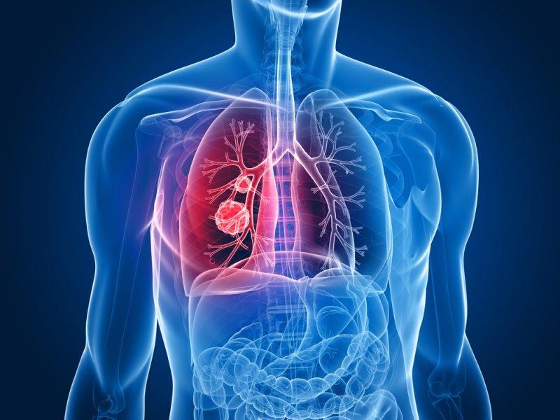 eNose предсказывает невосприимчивых к иммунотерапии рака легких