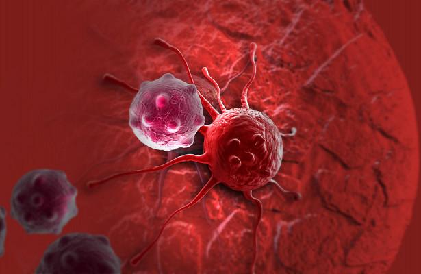 Врачи начнут выявлять рак на ранних стадиях