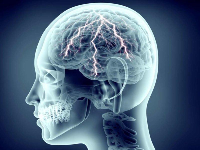 Рак мозга выявить не просто