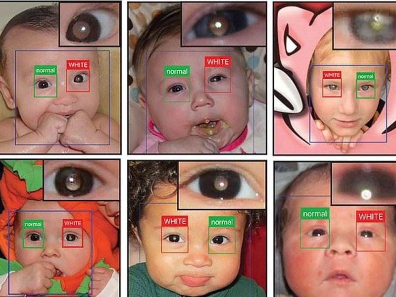 Мобильное приложение поможет диагностировать редкий рак глаз