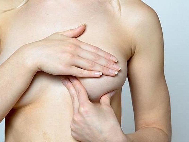 Смертность от рака груди в США упала на 40% за 30 лет
