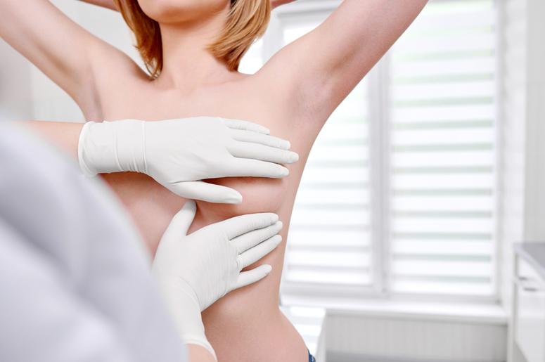 Рак молочной железы: Как он себя проявляет на 1 стадии