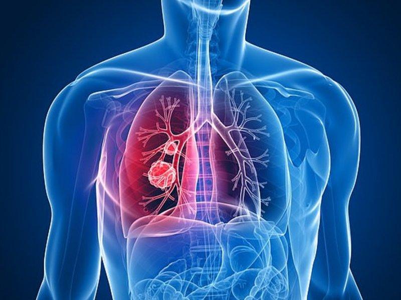 Анализ крови избавят жертв рака легких от химиотерапии
