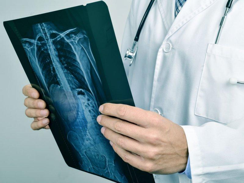 Симптом рака кишечника, который мы игнорируем