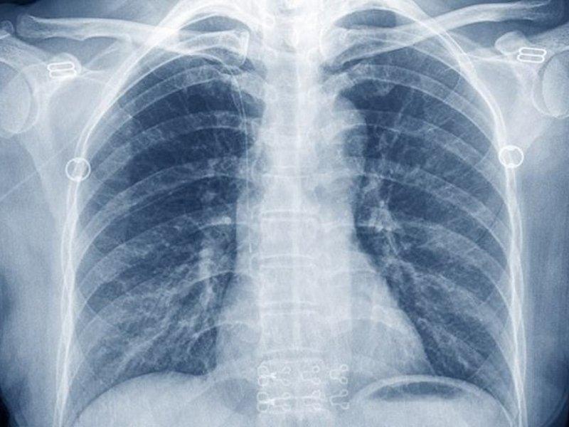 Рентген грудной клетки не видит каждый 4-й рак легких