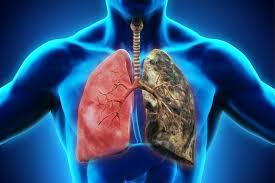 Рак лёгких: симптомы, причины, диагностика