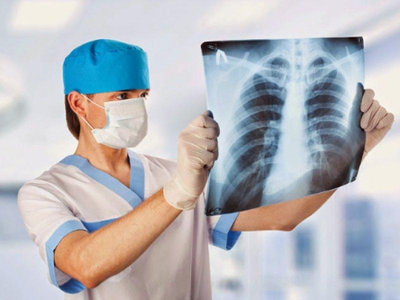 Врач-онколог назвала симптомы, которые могут сигналить о раке легкого