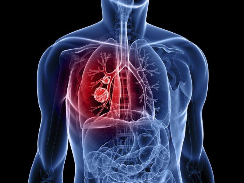 Нанотехнологии показали выдающиеся результаты в лечении рака легких
