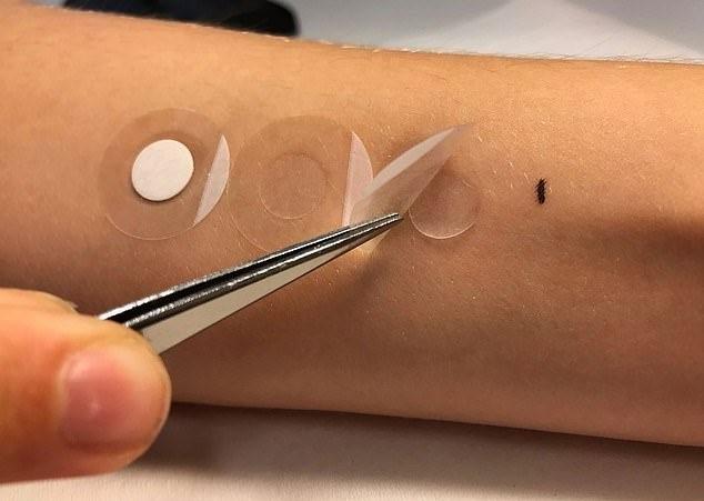 Шведские ученые создают пластырь для определения меланомы