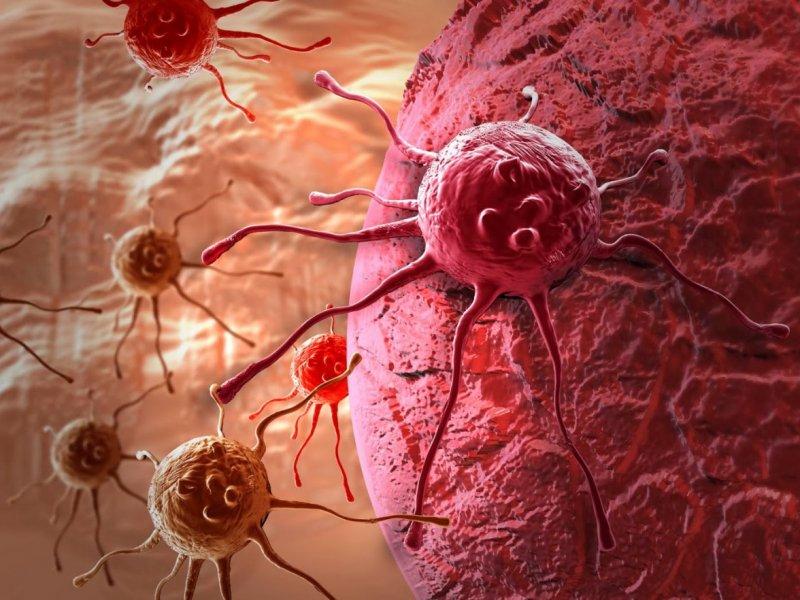 Главный онколог России: сегодня выздоравливают даже с запущенной формой рака