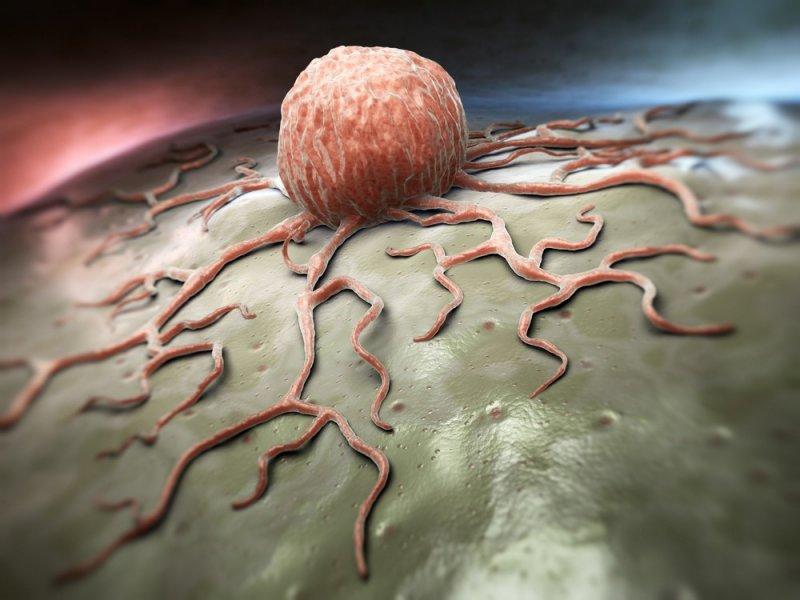 Найден новый метод борьбы с детским лейкозом