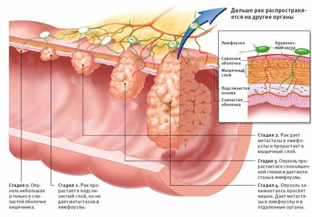 Рак кишечника – способствуют ли антибиотики прогрессированию заболевания
