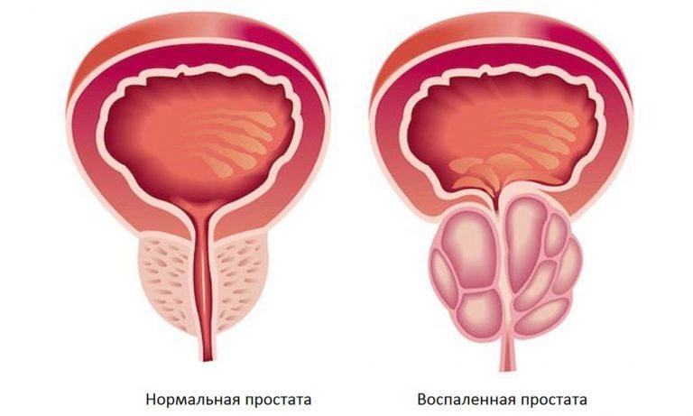 Простатит – чисто мужское заболевание
