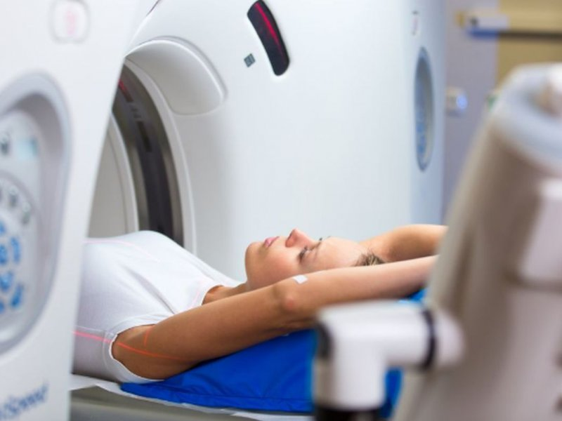 Мнение эксперта: может ли томография вызывать рак?