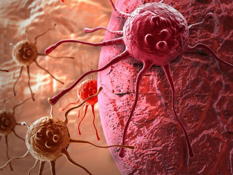 Медики прогнозируют рост онкологии на 30 процентов