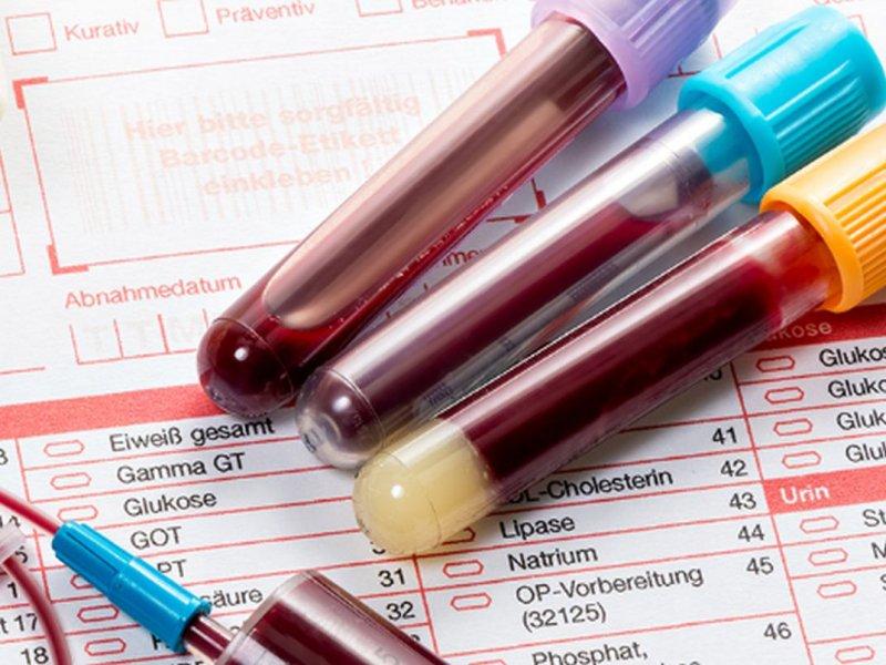 Врач: низкий гемоглобин может говорить о начинающемся раке кишечника или желудка