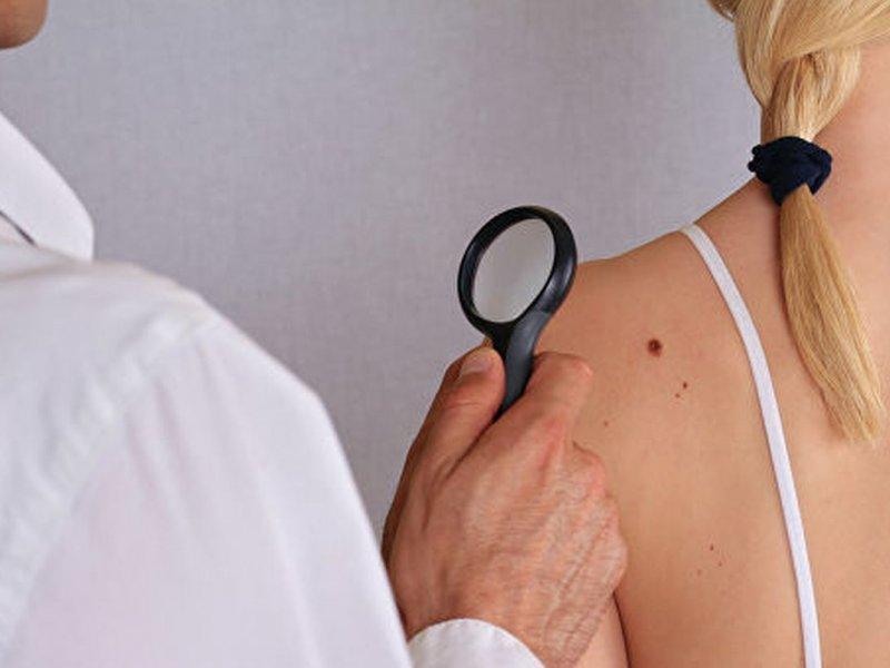 Немецкие медики рассказали, как распознать рак кожи