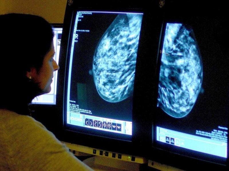 Искусственный интеллект предсказывает риск рака груди