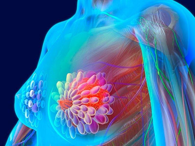 Пережившим рак груди угрожают другие тяжелые болезни