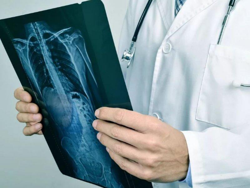 Возможно, это рак легких. 13 симптомов, которые нельзя игнорировать