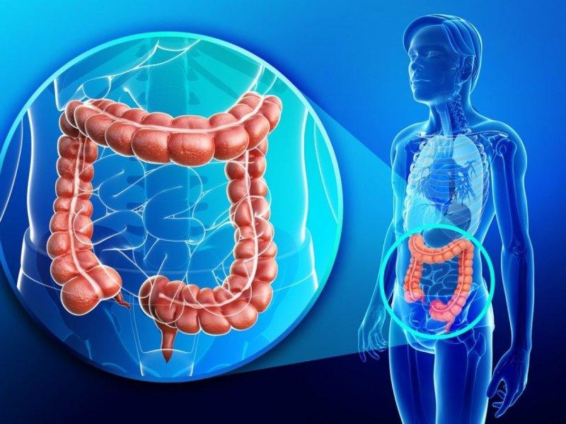 Ученые: колоректальный рак связан с нарушением микробиома кишечника