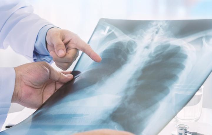 Факторы риска и симптомы рака легкого