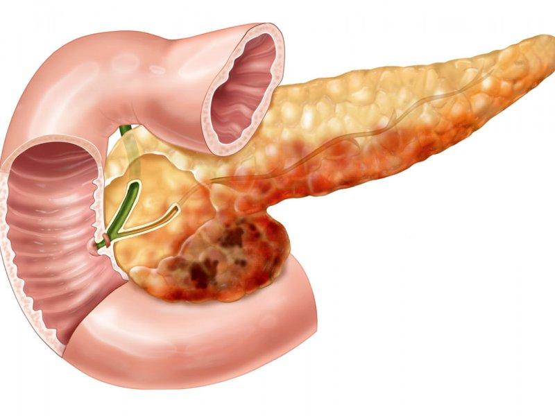 Рак поджелудочной: как жить, чтобы не заболеть самым трудноизлечимым видом рака