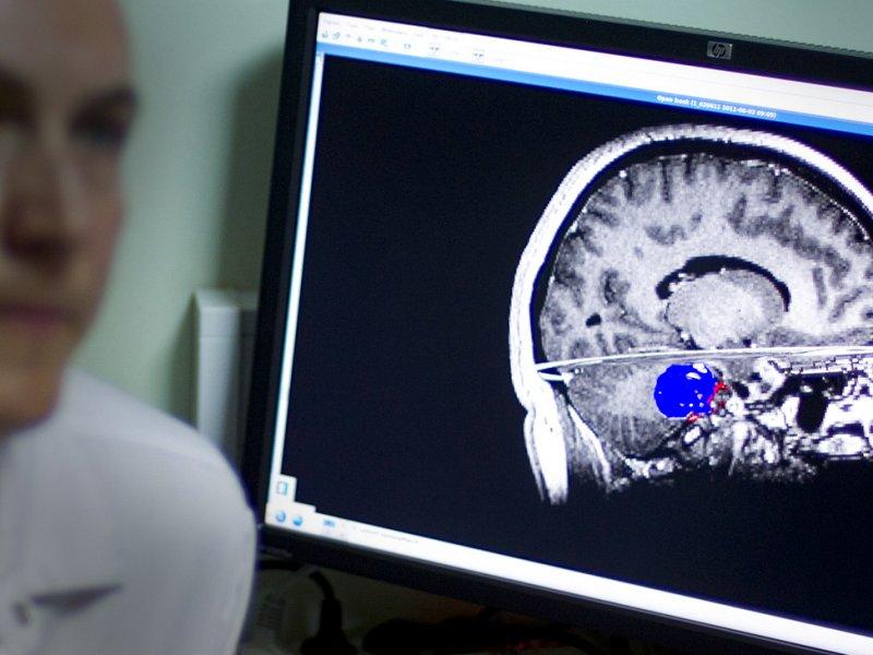 Прорыв в лечении рака мозга: найдет способ применять иммунотерапию