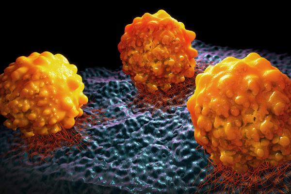 Ученые выяснили, как предотвратить смертельную стадию рака